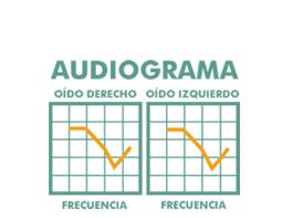 audiograma copia